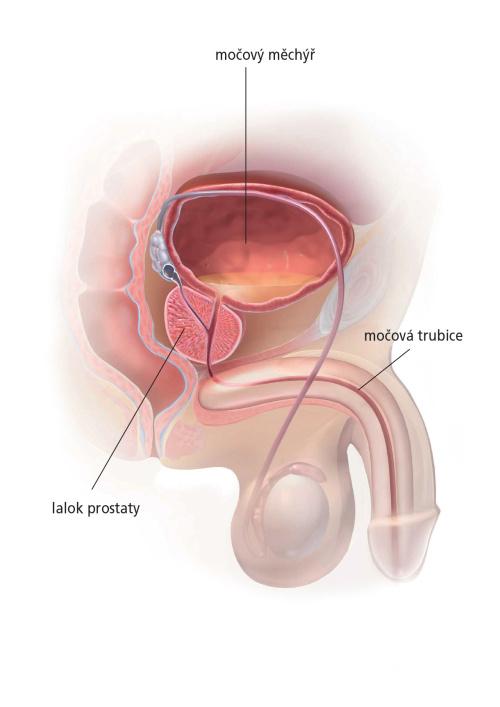 Kouření prostaty